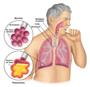 Pengobatan Sakit Tbc